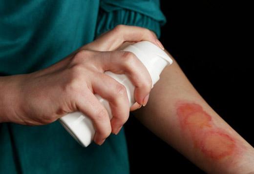 Ожог кипятком лечение в домашних условиях волдыри 135