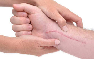 Можно ли избавиться от шрамов и какими методам можно их убрать