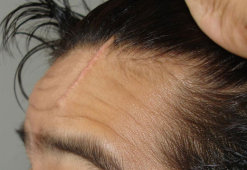 Шрам на голове: особенности заживления и способы маскировки