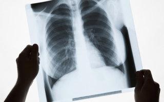 Что такое рубец на легком и какая связь с пневмонией