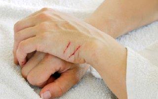 Распространенные причиныплохо заживающих ран на коже