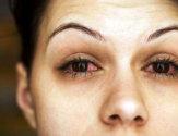Химический ожог глаза: симптомы, первая помощь и последующее лечение