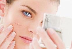 Обзор эффективных препаратов для рассасывания шрамов и рубцов