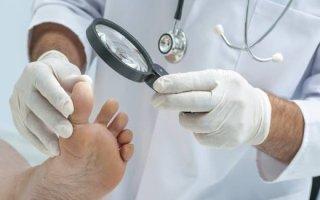 Особенности заживления и лечения ран на ногах при сахарном диабете