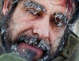 Степени обморожения, их характеристика и опасность