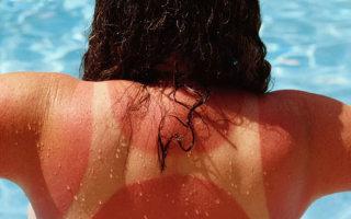 Первая помощь при солнечных ожогах: что делать и как лечить