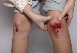 Рана на ноге долго не заживает: способы ускорения восстановления