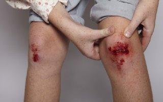 Рана ноге долго не заживает: способы ускорения восстановления