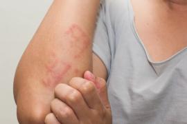 Крапивница: симптомы, причины, виды, лечение и осложнения