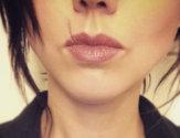 Как убрать некрасивый шрам на губе легко и безболезненно
