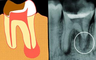 Гранулема зуба. Основные сведения