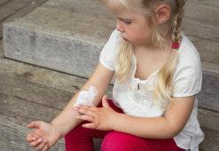 Как снять боль от ожога: обзор домашних средств и аптечных препаратов