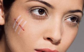Как избавиться от шрамов на лице: обзор эффективных методов