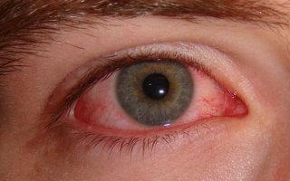 Ожог глаз: виды повреждения и методы лечения