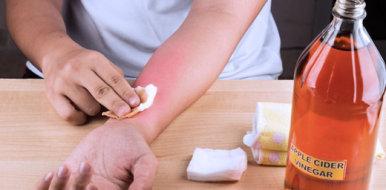 Загноился ожог: правила лечения, ухода и профилактики