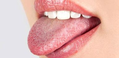Особенности лечения и оказания первой помощи при ожоге языка