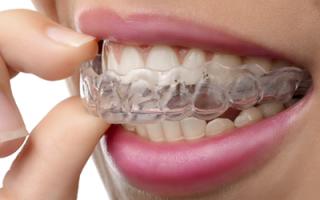 Лечение зубов без брекетов: как проводится терапия элайнерами