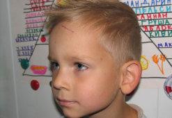 Обзор эффективных методов избавления от шрамов у детей на лице и теле