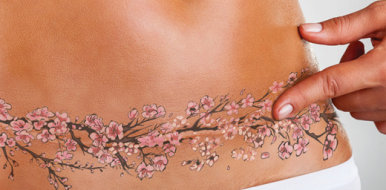 Можно ли делать татуировку на шраме и особенности их перекрытия рисунком