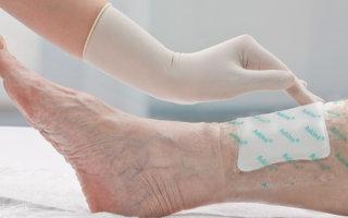 Как происходит регенерация кожи: виды заживления