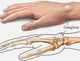 Образование шишек и наростов на пальцах рук: причины, симптомы и лечение