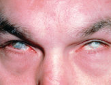 Ожог роговицы (слизистой) глаза: признаки, первая помощь и лечение