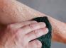 Первая медицинская помощь при химических ожогах кожи