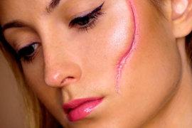 Что делать, если болит рубец после перенесенной операции