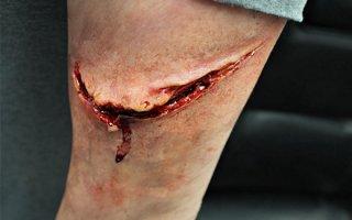 Как ускорить заживление рваной раны: обзор средств для лечения