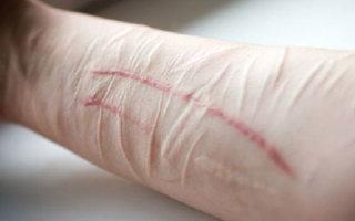 Как можно быстро убрать шрамы от порезов на руке
