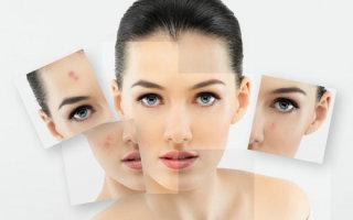 Кремы и мази от рубцов на лице после прыщей: показания и противопоказания