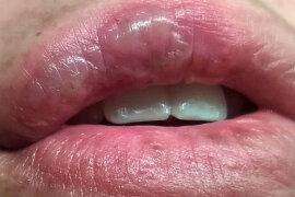 Как быстро вылечить термический и химический ожог губы