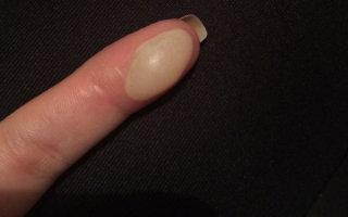 Что делать при ожоге пальца: оказание первой помощи и дальнейшее лечение