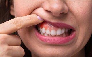 Что делать, если около зуба воспалилась десна:  причины  и  меры профилактики