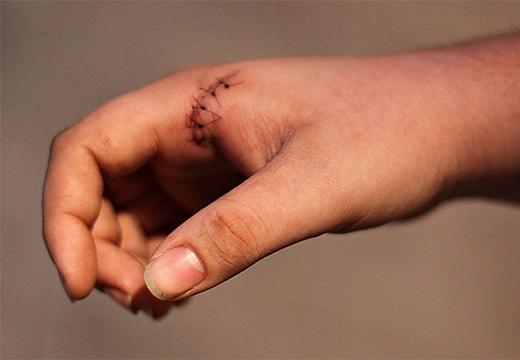 швы на руке