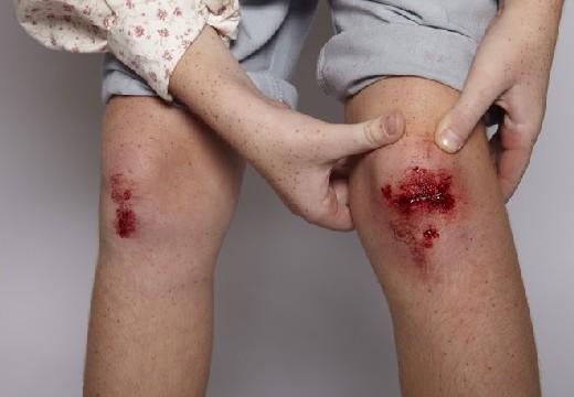 незаживающая рана