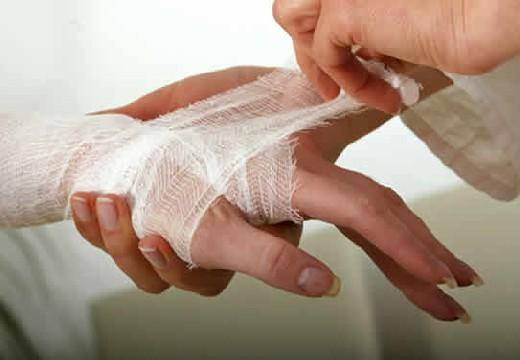 забинтовывание руки