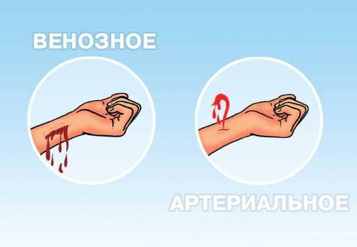 Остановить кровотечение при ранении вены thumbnail