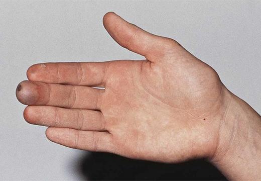 рука и повреждение
