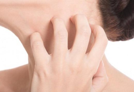 чешется шея у женщины