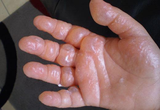 Пузырьки на руке от ожога кипятком