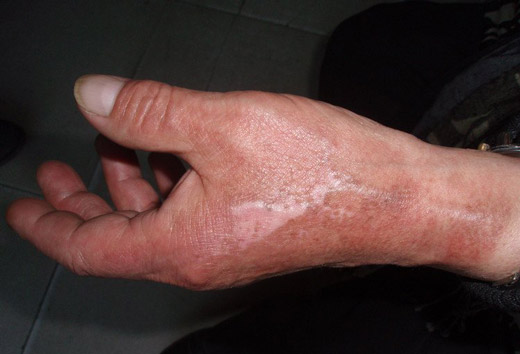 химический ожог руки