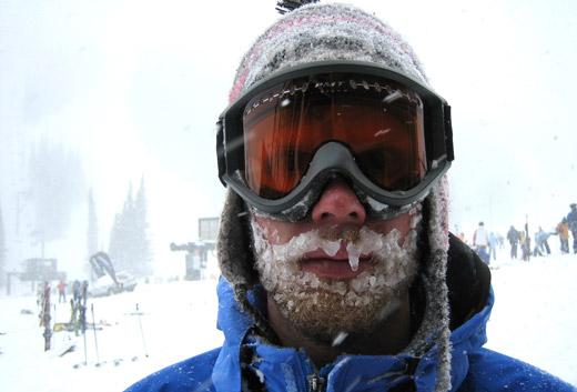 обморожение у человека