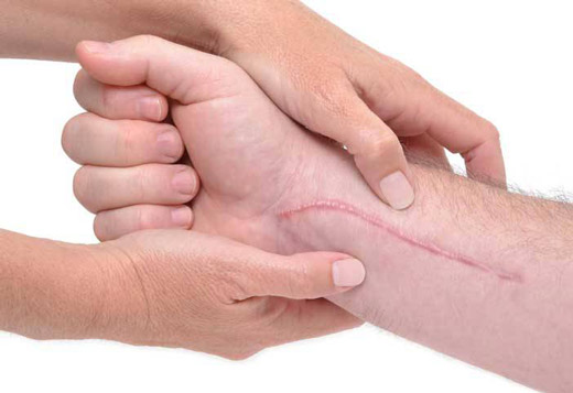 большой шрам на руке