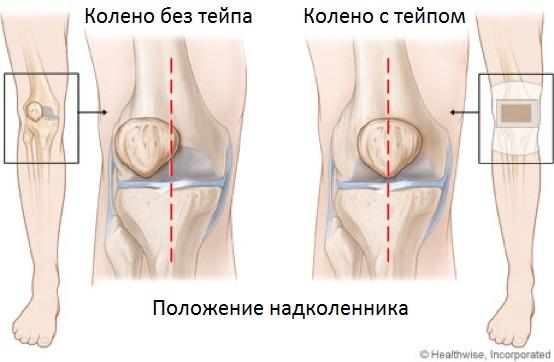 Травма коленного сустава, способ лечения - тейпирование, фото
