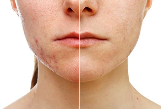 до и после чистки лица