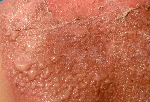 последствия лучевого ожога кожи