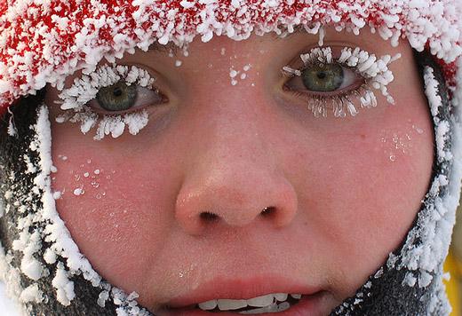 обмороженное лицо у девушки