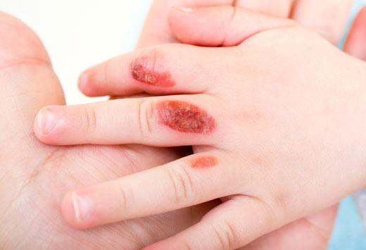 последствия ожога 3 степени на руке