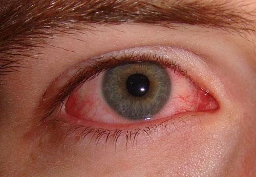 симптомы ожога глаза